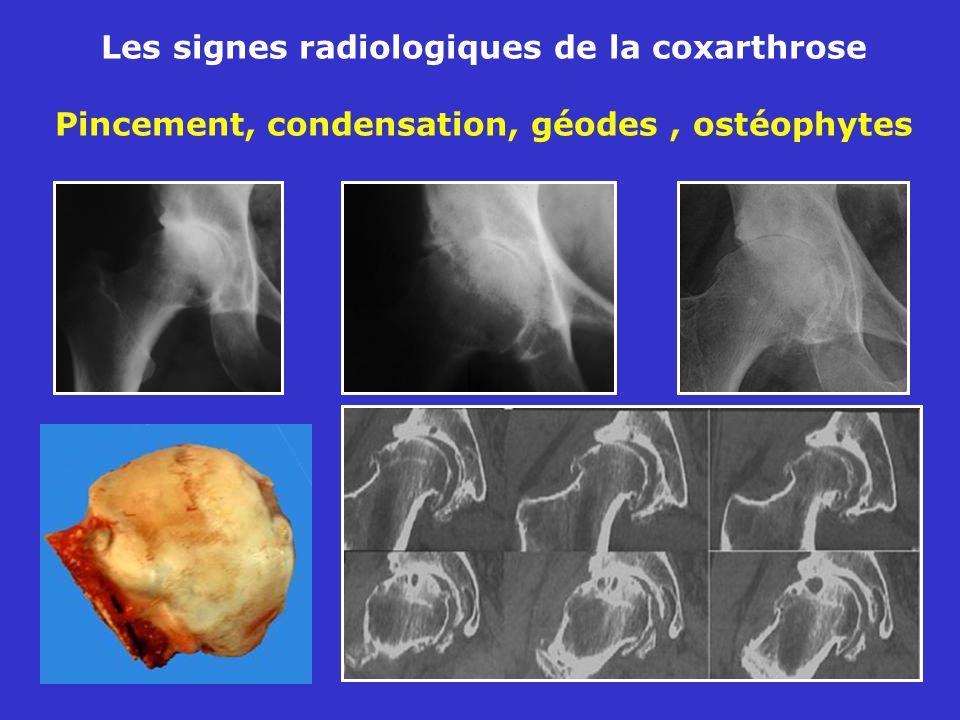 Les signes radiologiques de la coxarthrose Pincement, condensation, géodes , ostéophytes