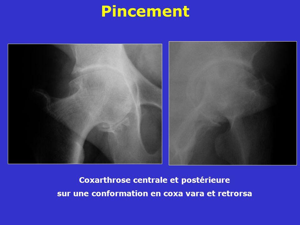 Pincement Coxarthrose centrale et postérieure