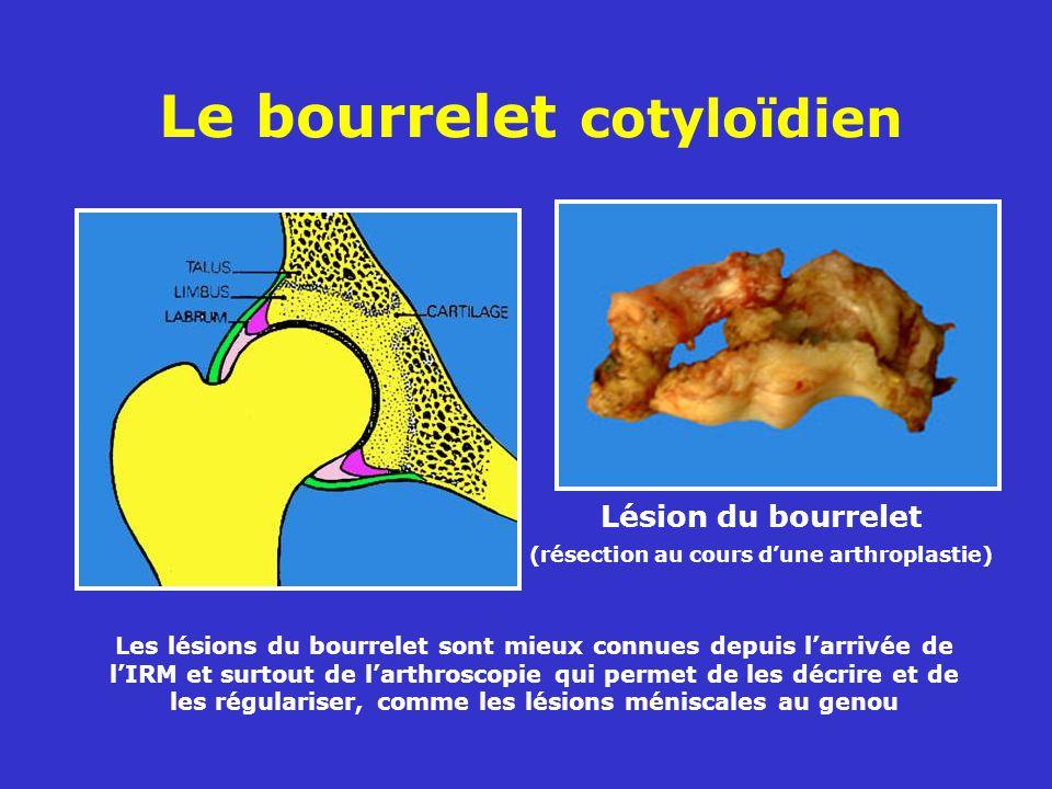 Le bourrelet cotyloïdien