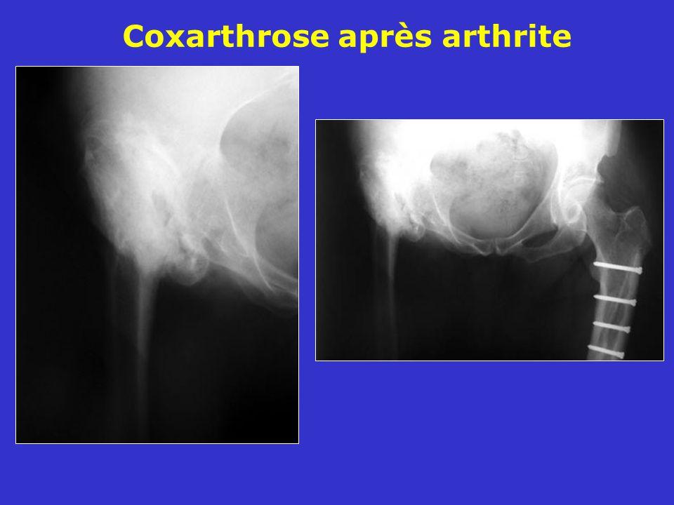 Coxarthrose après arthrite
