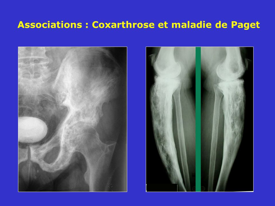 Associations : Coxarthrose et maladie de Paget
