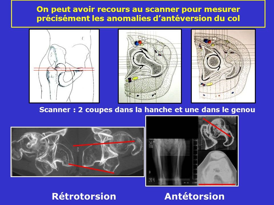 Rétrotorsion Antétorsion