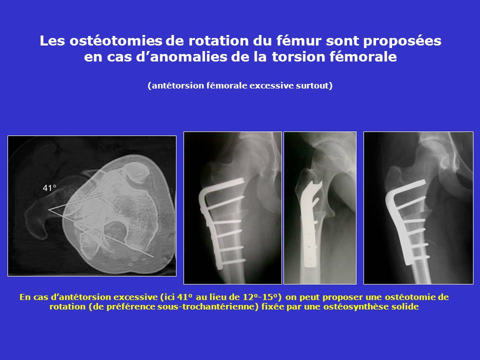 Les ostéotomies de rotation du fémur sont proposées en cas d'anomalies de la torsion fémorale (antétorsion fémorale excessive surtout)