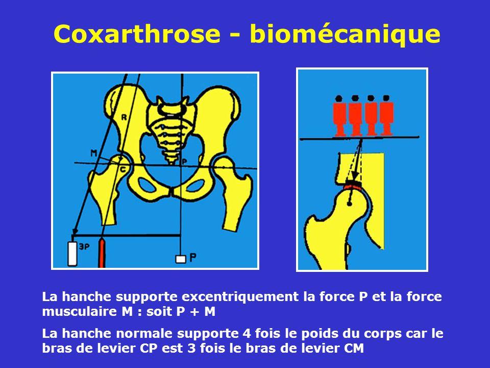 Coxarthrose - biomécanique