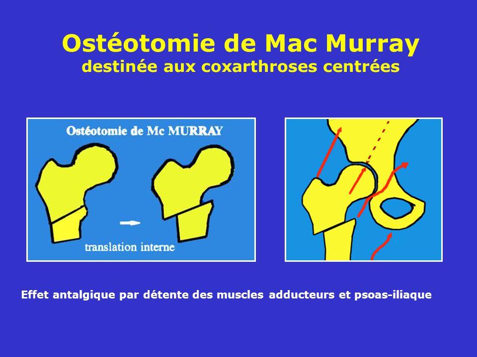 Ostéotomie de Mac Murray destinée aux coxarthroses centrées
