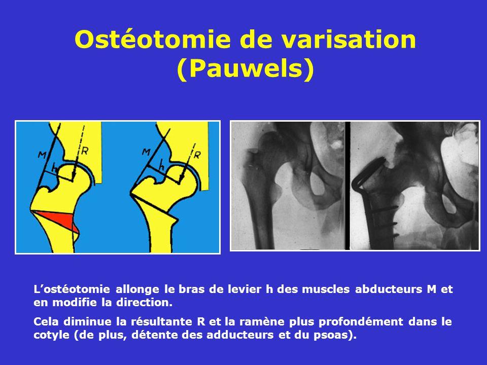 Ostéotomie de varisation (Pauwels)