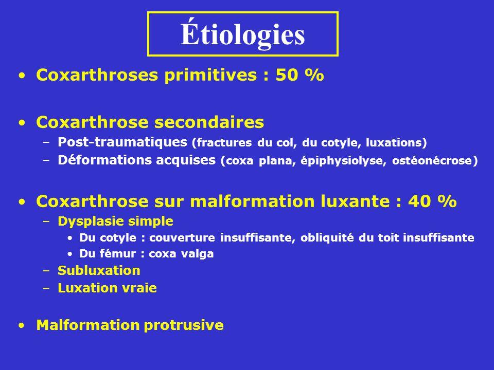 Étiologies Coxarthroses primitives : 50 % Coxarthrose secondaires