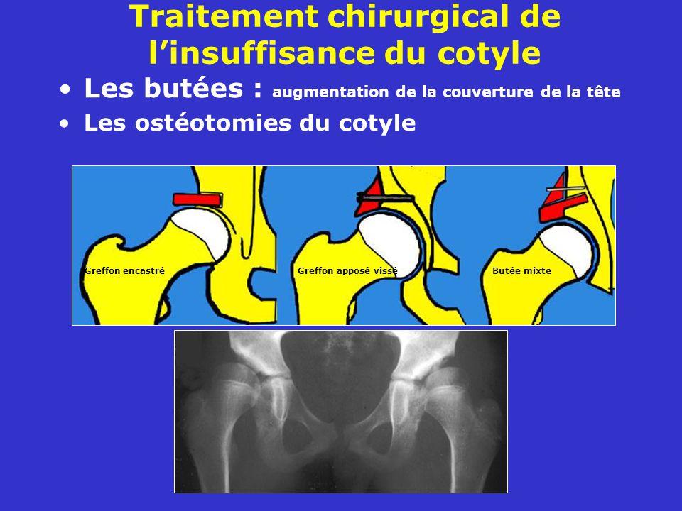 Traitement chirurgical de l'insuffisance du cotyle