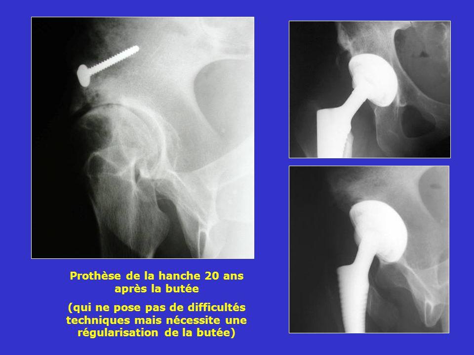 Prothèse de la hanche 20 ans après la butée