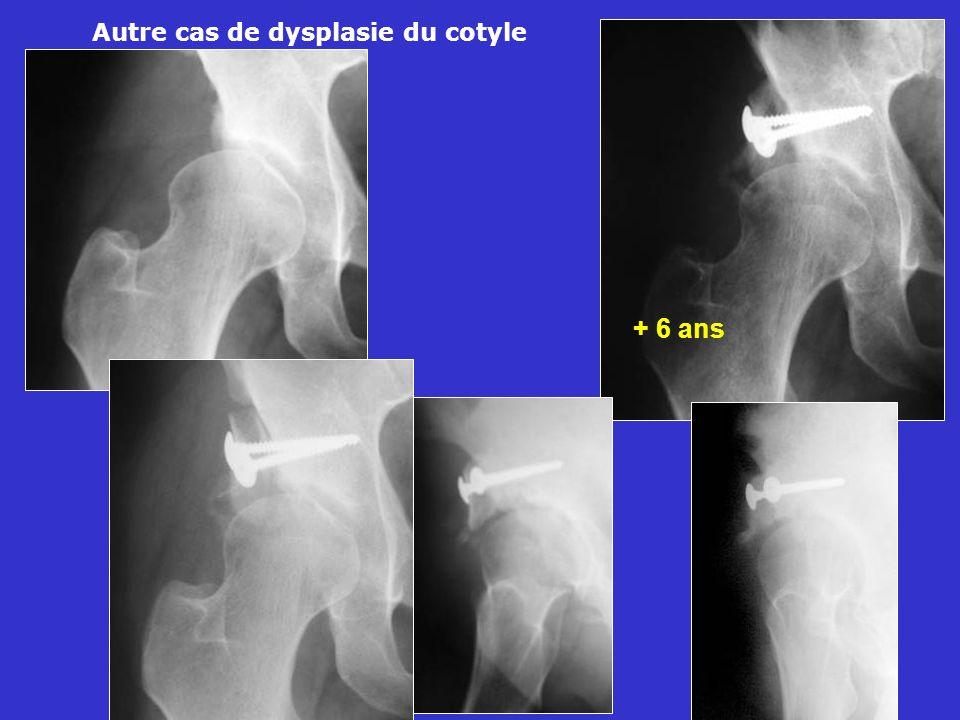 Autre cas de dysplasie du cotyle