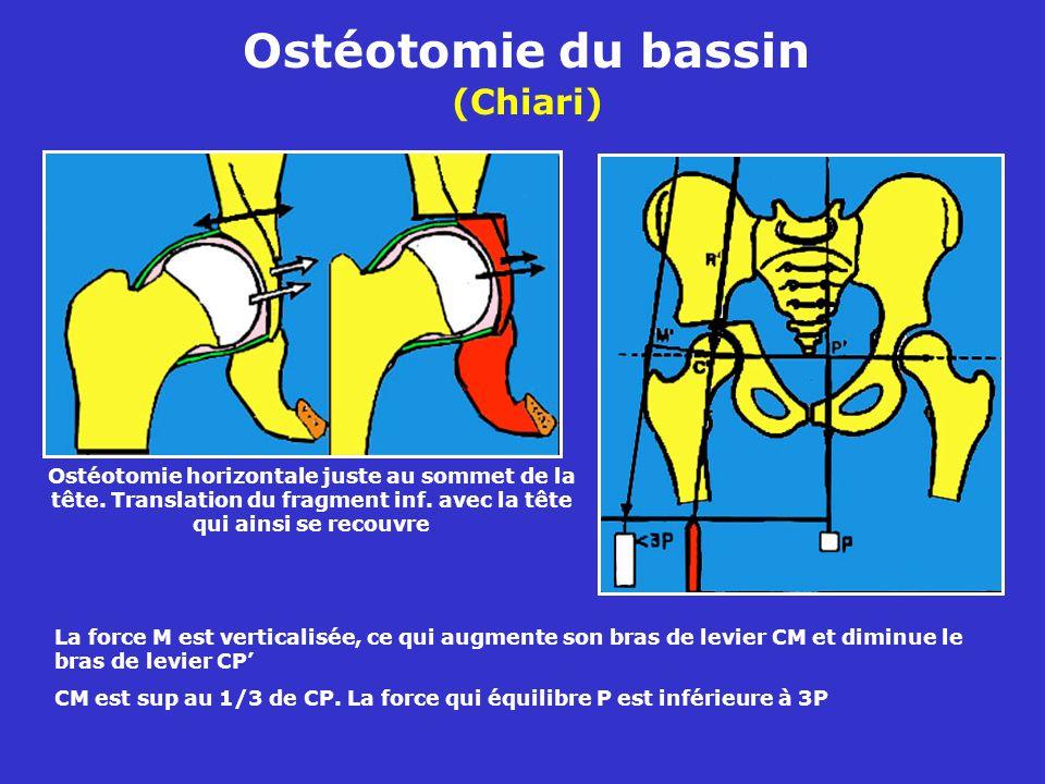Ostéotomie du bassin (Chiari)