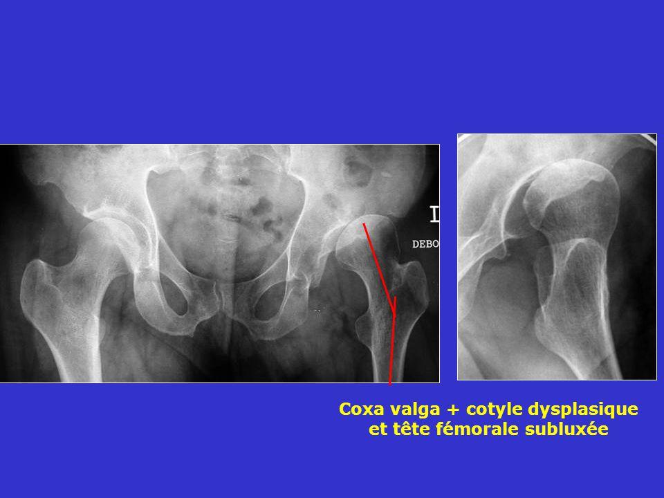 Coxa valga + cotyle dysplasique et tête fémorale subluxée