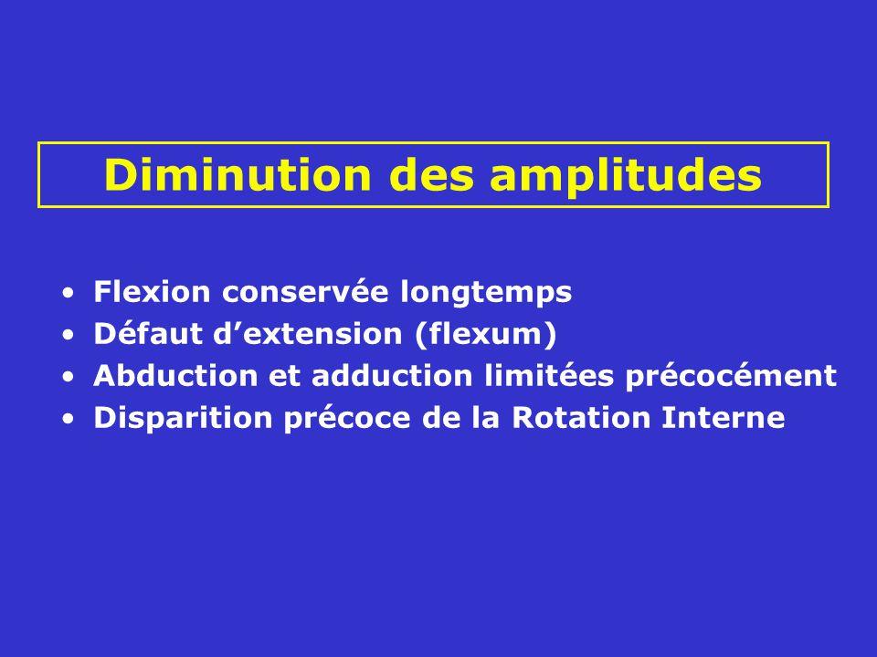 Diminution des amplitudes