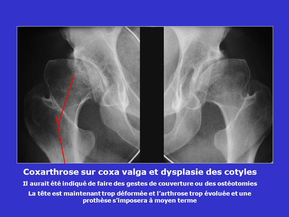 Coxarthrose sur coxa valga et dysplasie des cotyles