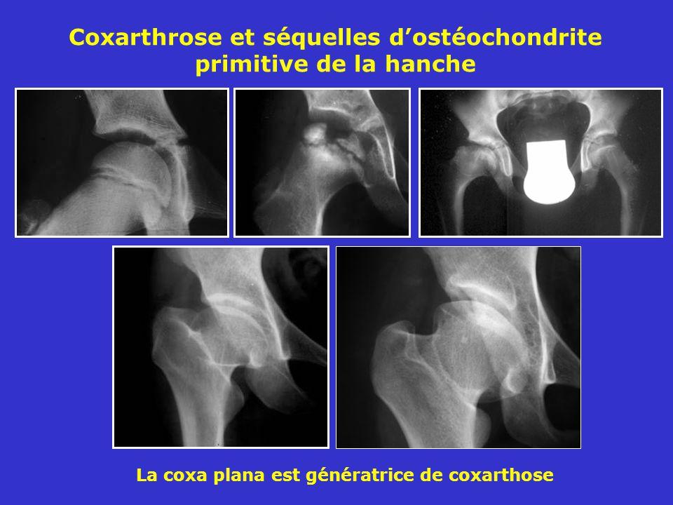 Coxarthrose et séquelles d'ostéochondrite primitive de la hanche