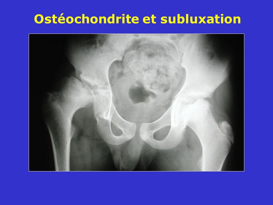 Ostéochondrite et subluxation