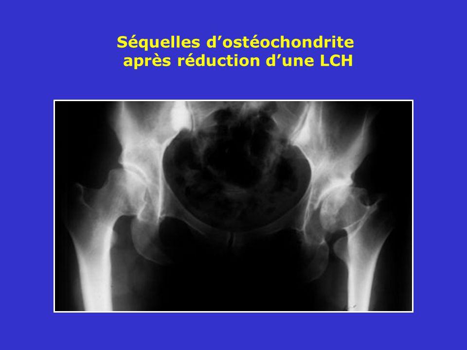 Séquelles d'ostéochondrite après réduction d'une LCH