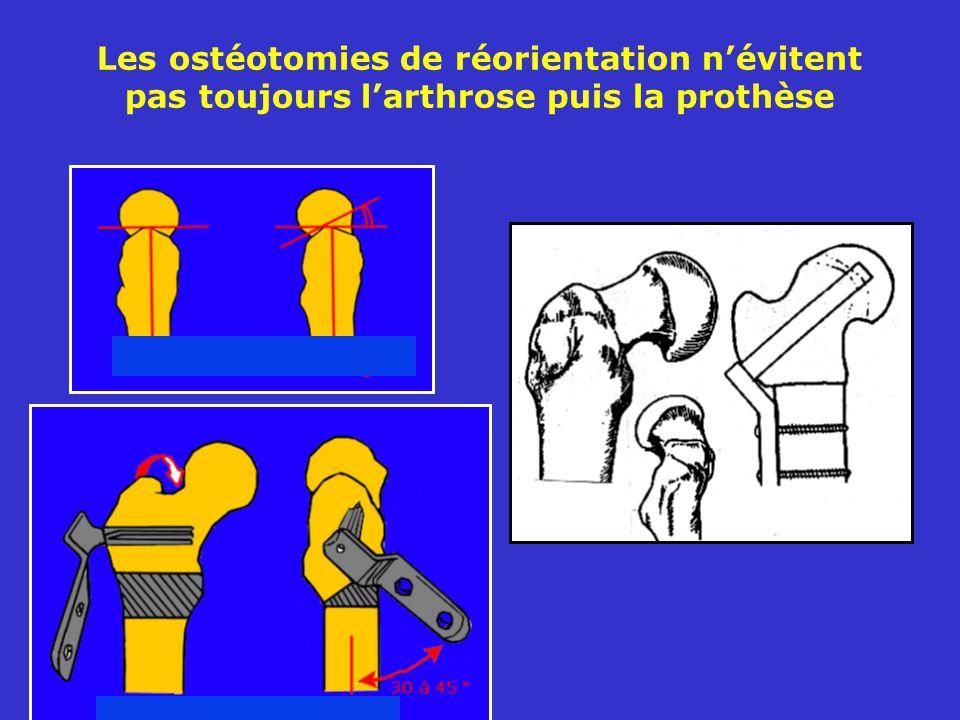 Les ostéotomies de réorientation n'évitent pas toujours l'arthrose puis la prothèse