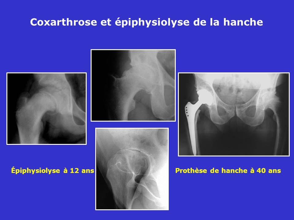 Épiphysiolyse à 12 ans Prothèse de hanche à 40 ans