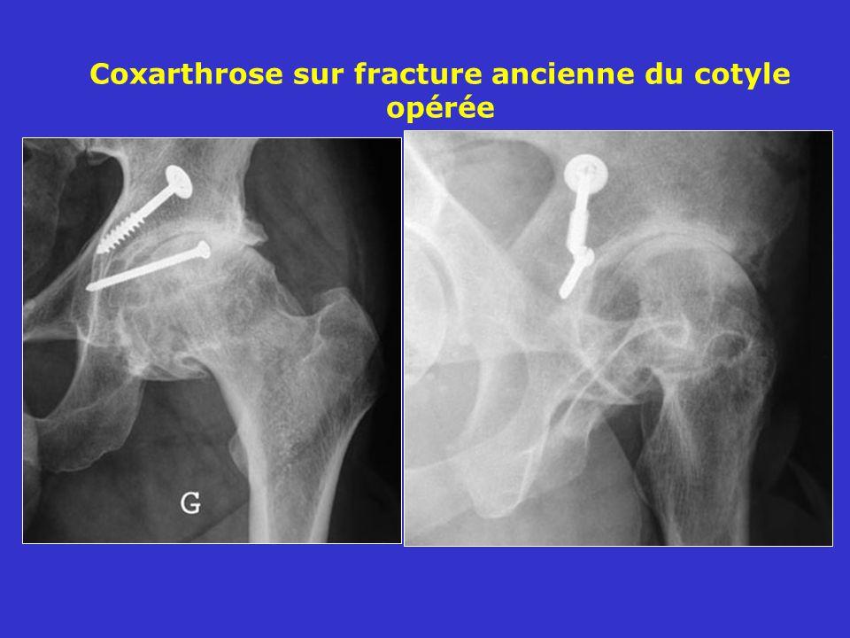 Coxarthrose sur fracture ancienne du cotyle opérée