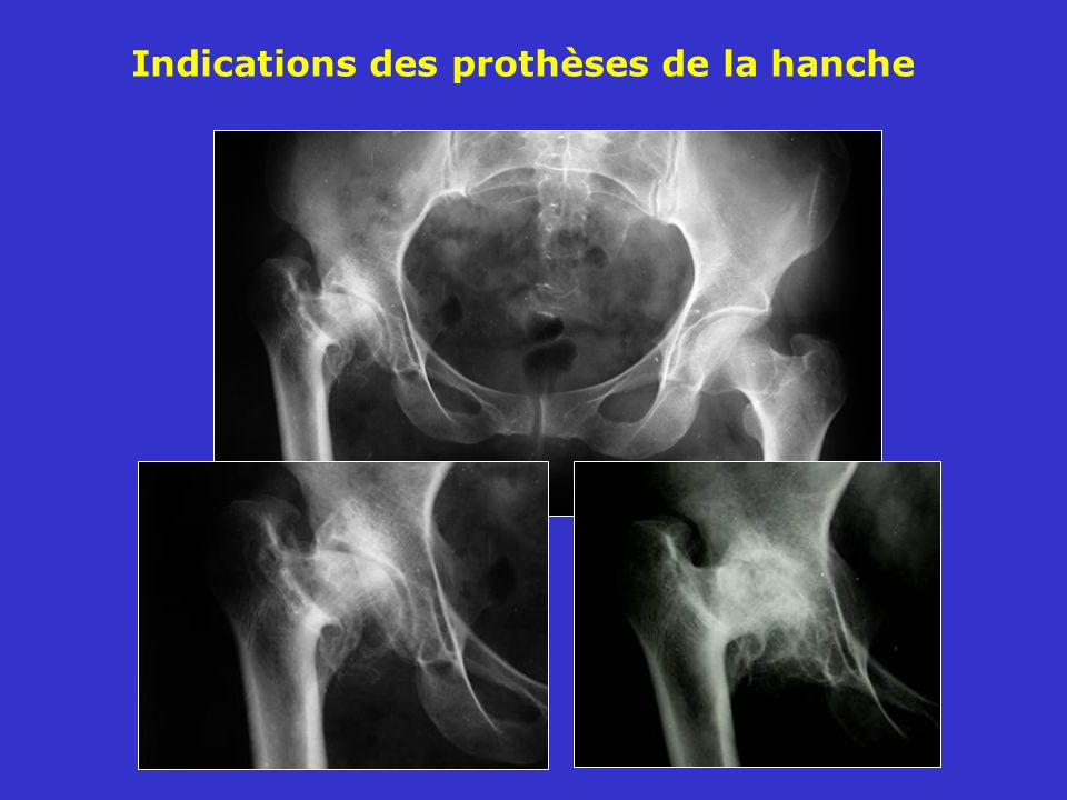 Indications des prothèses de la hanche