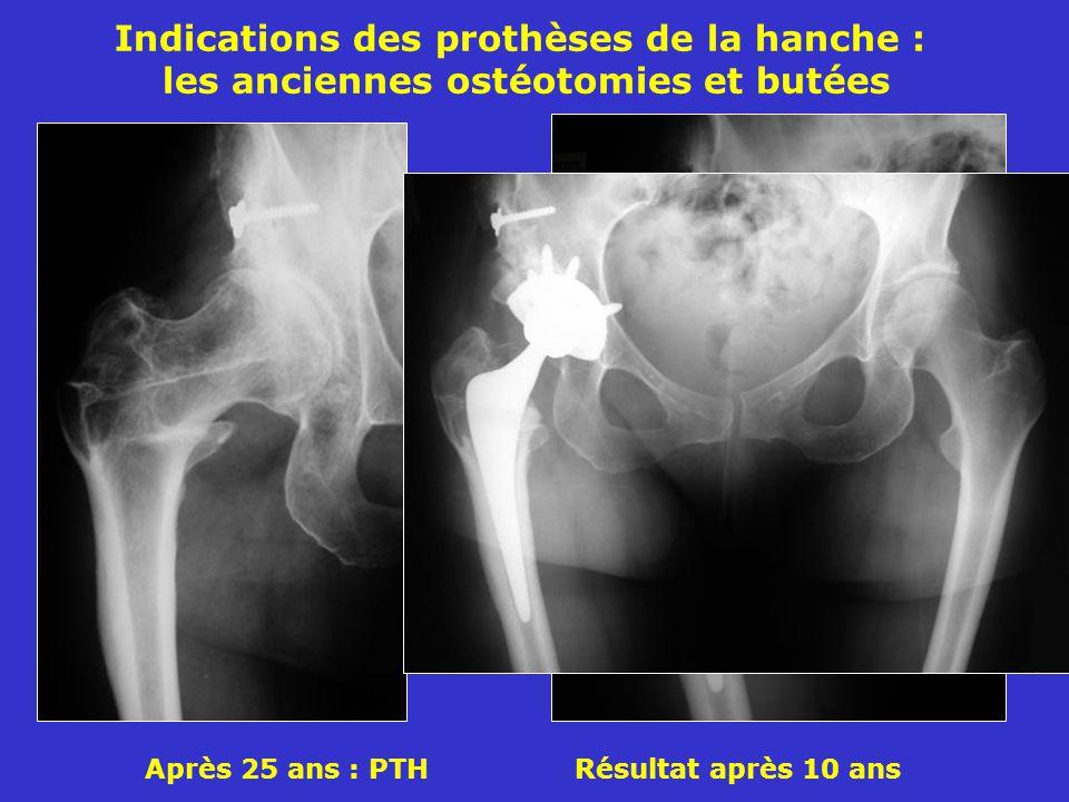 Indications des prothèses de la hanche : les anciennes ostéotomies et butées