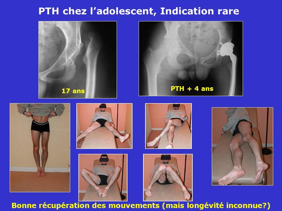 PTH chez l'adolescent, Indication rare