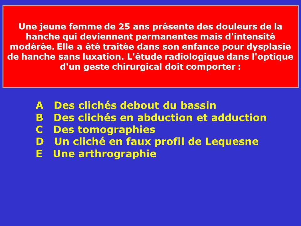 A Des clichés debout du bassin B Des clichés en abduction et adduction