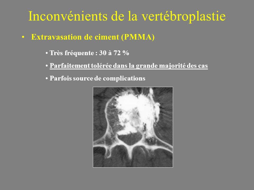 Inconvénients de la vertébroplastie