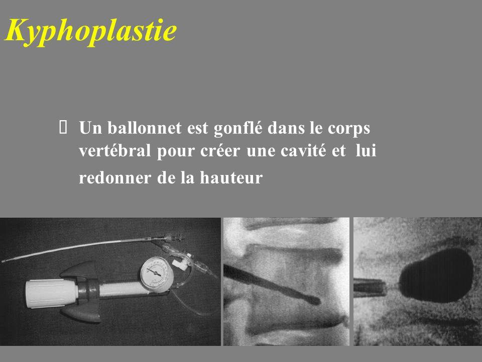 Kyphoplastie Un ballonnet est gonflé dans le corps vertébral pour créer une cavité et lui.