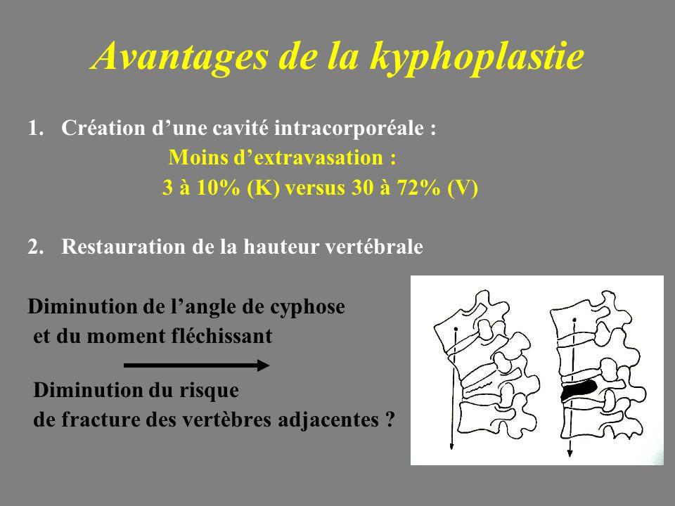 Avantages de la kyphoplastie