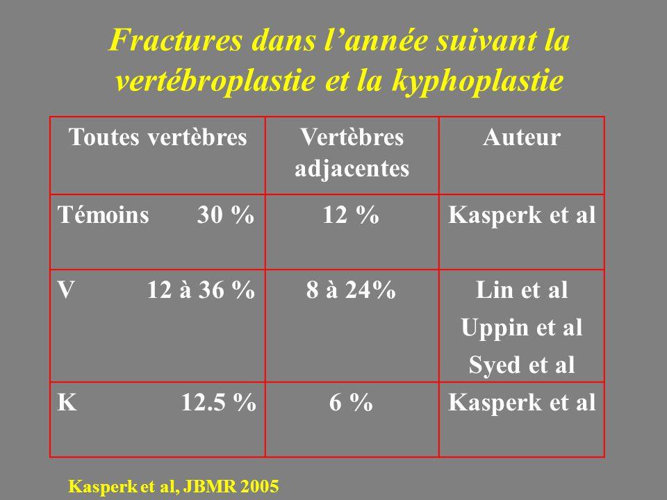 Fractures dans l'année suivant la vertébroplastie et la kyphoplastie