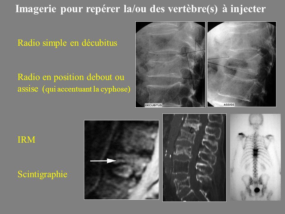 Imagerie pour repérer la/ou des vertèbre(s) à injecter