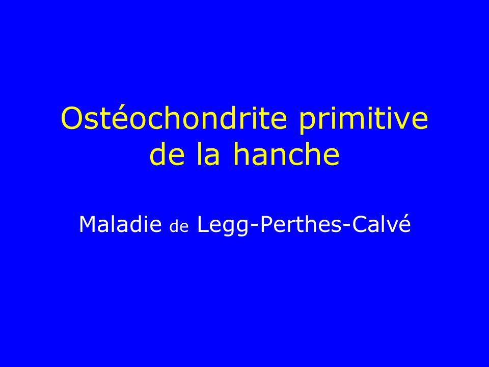 Ostéochondrite primitive de la hanche