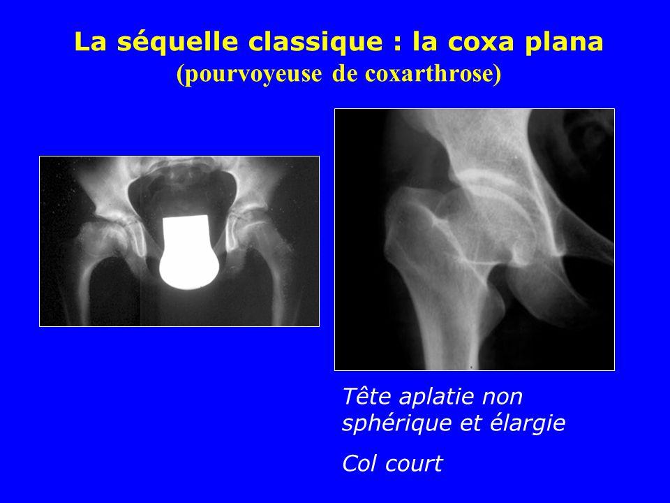 La séquelle classique : la coxa plana (pourvoyeuse de coxarthrose)