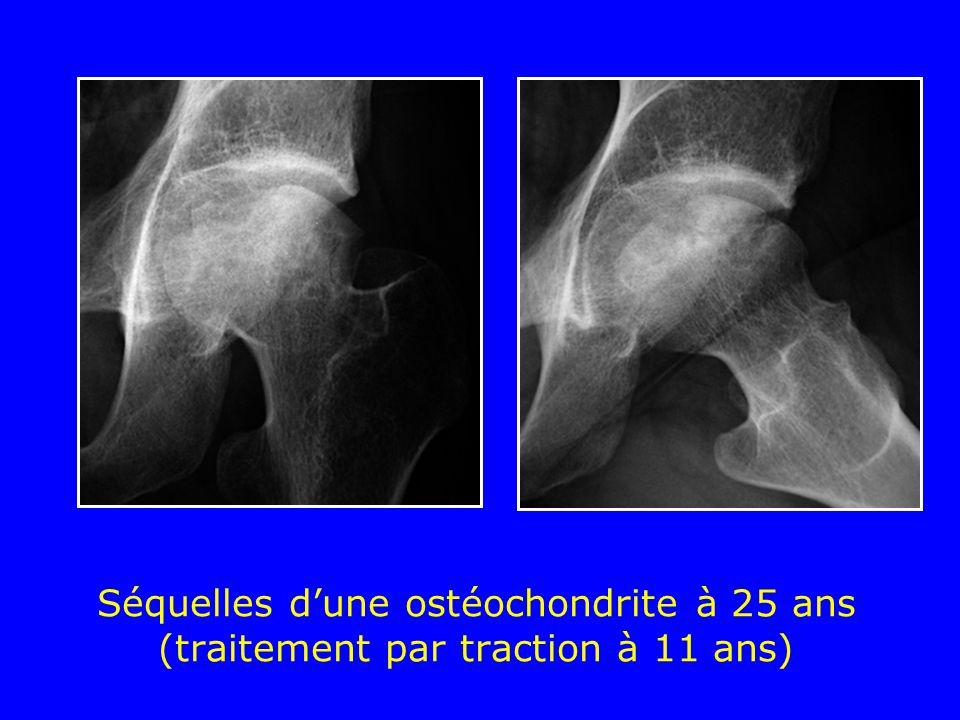 Séquelles d'une ostéochondrite à 25 ans (traitement par traction à 11 ans)