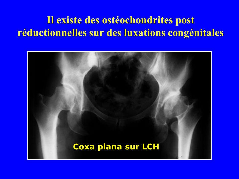 Il existe des ostéochondrites post réductionnelles sur des luxations congénitales