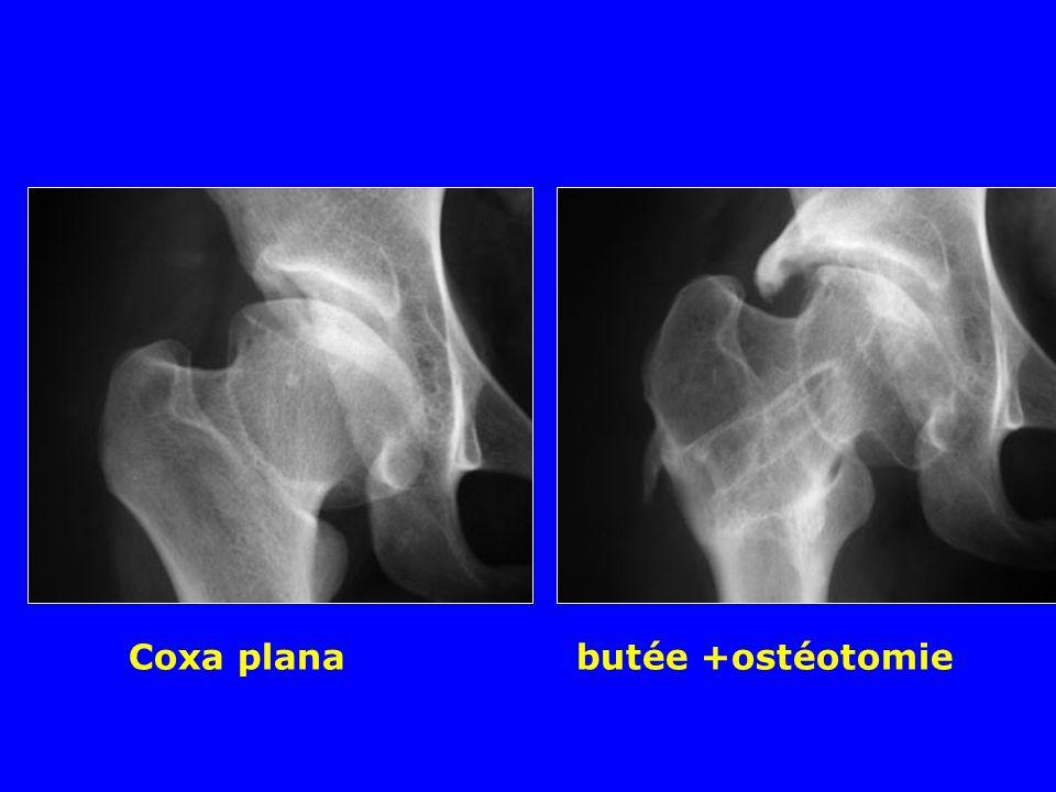 Coxa plana butée +ostéotomie