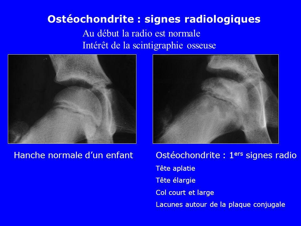 Ostéochondrite : signes radiologiques