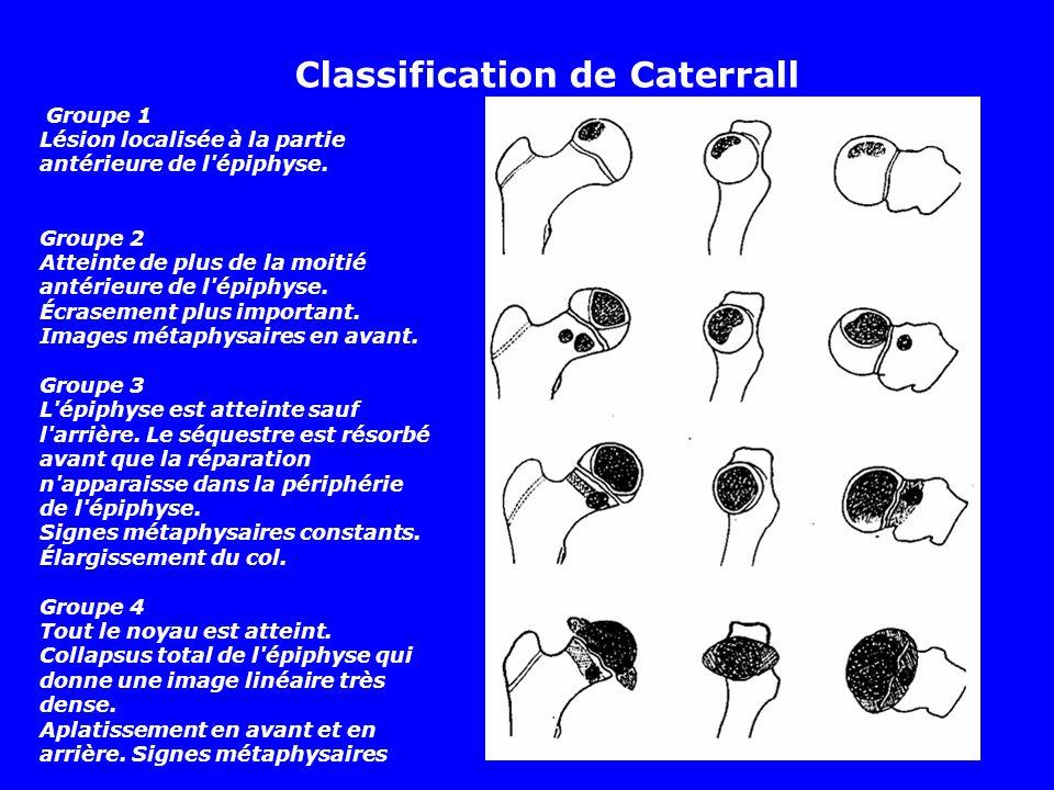 Classification de Caterrall