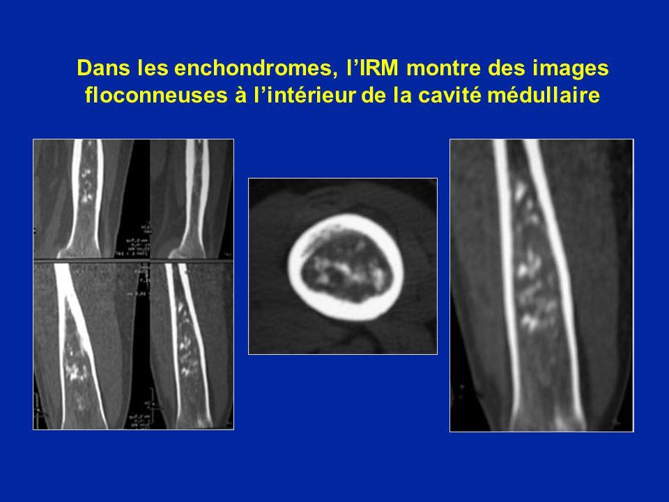 Dans les enchondromes, l'IRM montre des images floconneuses à l'intérieur de la cavité médullaire