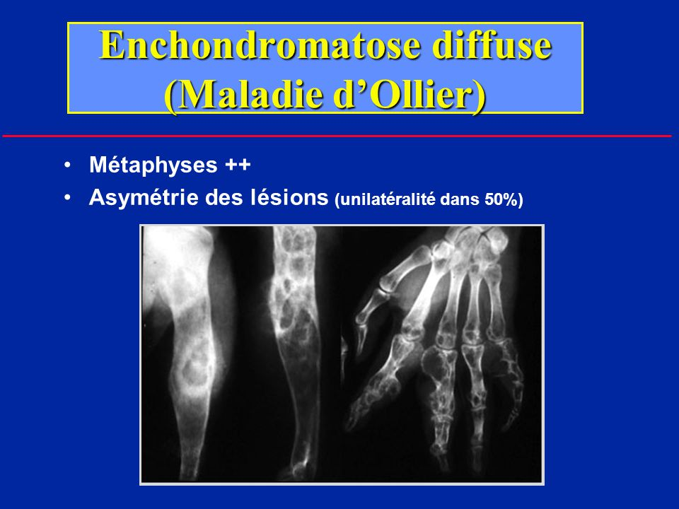 Enchondromatose diffuse (Maladie d'Ollier)
