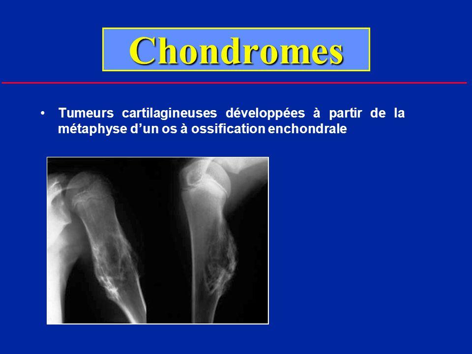 Chondromes Tumeurs cartilagineuses développées à partir de la métaphyse d'un os à ossification enchondrale.
