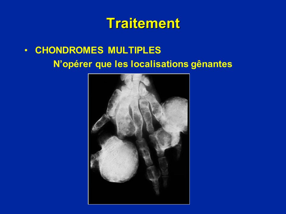 Traitement CHONDROMES MULTIPLES
