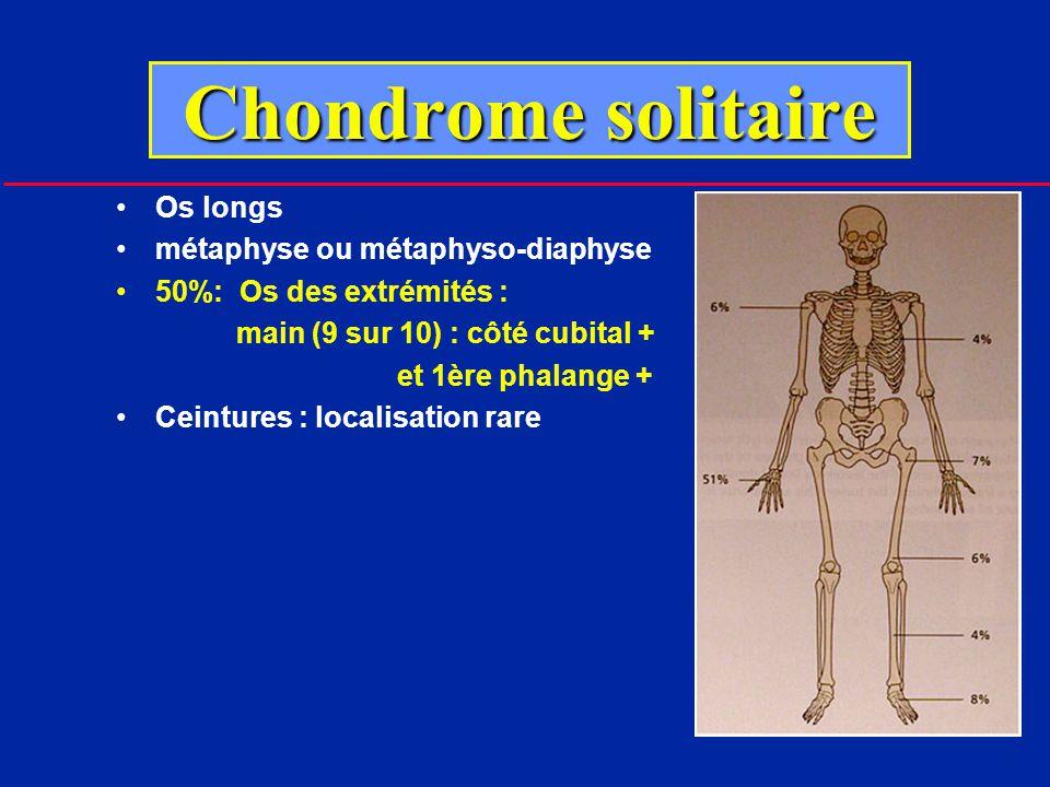 Chondrome solitaire Os longs métaphyse ou métaphyso-diaphyse