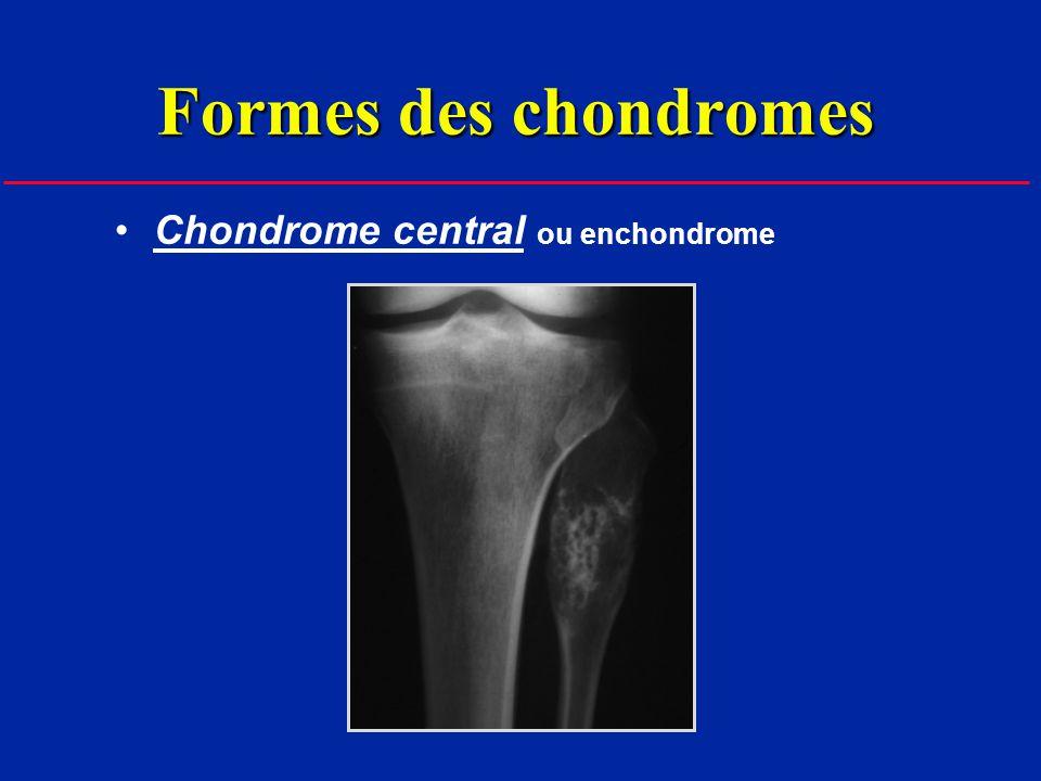 Formes des chondromes Chondrome central ou enchondrome