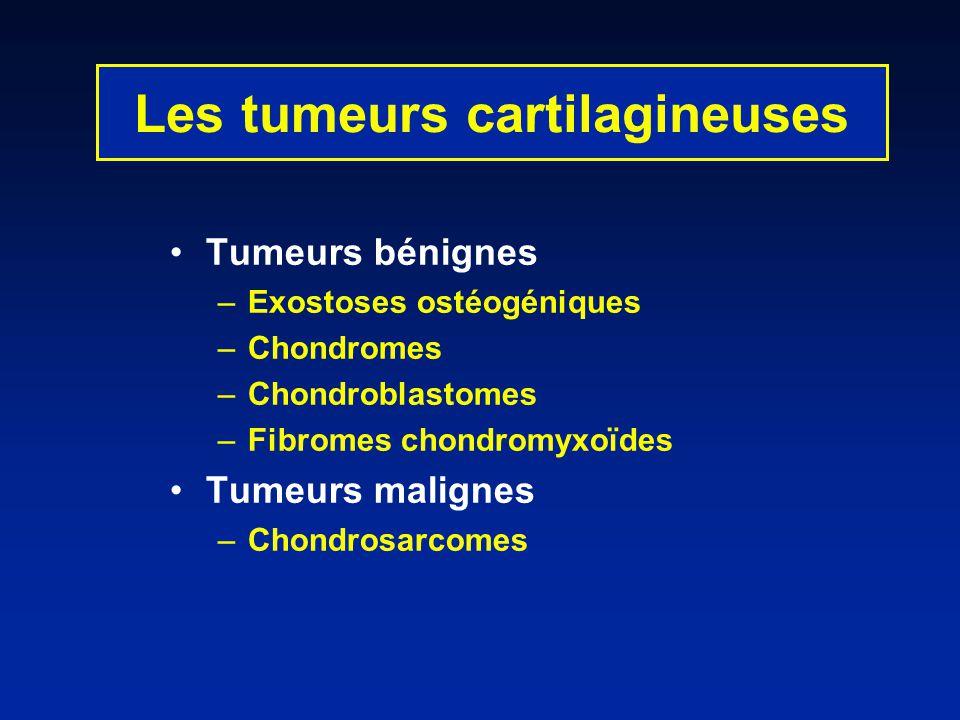 Les tumeurs cartilagineuses