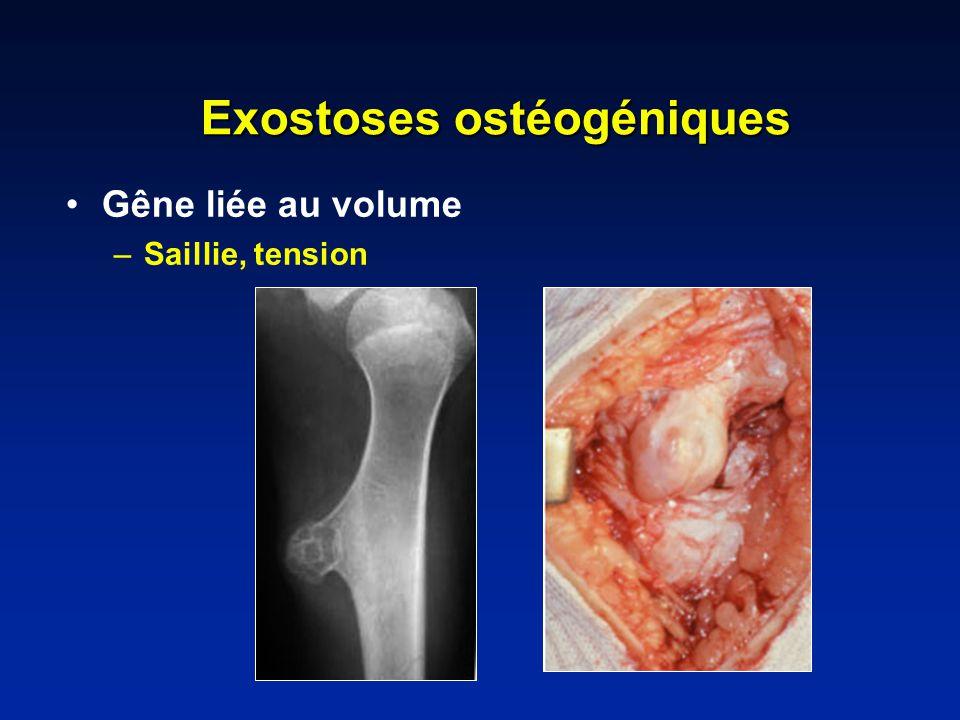 Exostoses ostéogéniques
