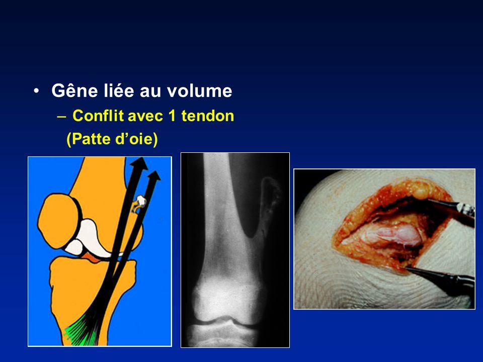 Gêne liée au volume Conflit avec 1 tendon (Patte d'oie)