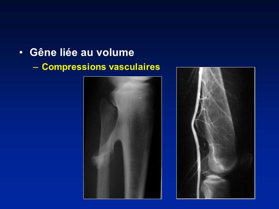 Gêne liée au volume Compressions vasculaires